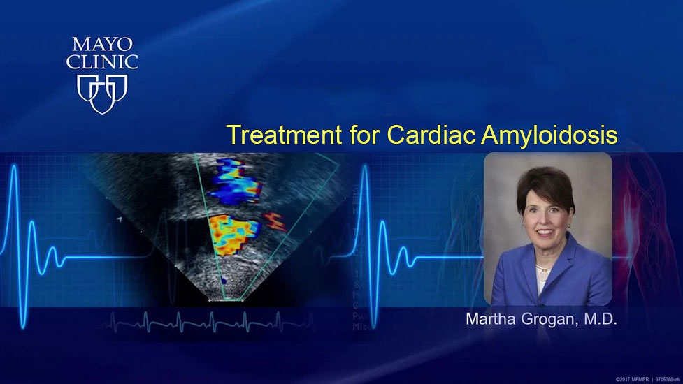 Diagnosis and pathophysiology of cardiac amylodosis
