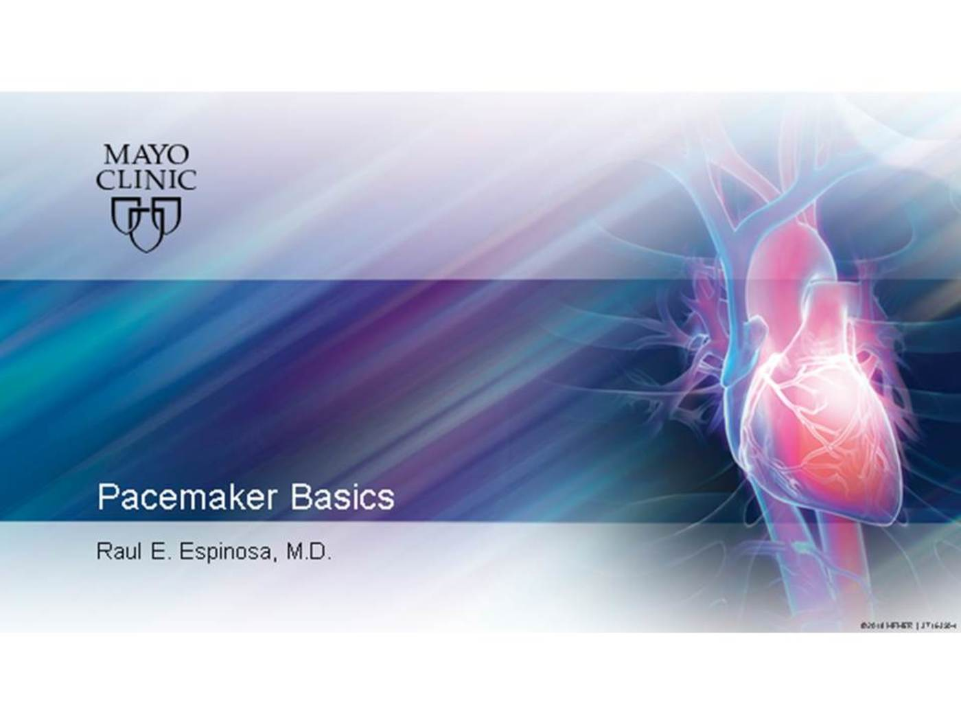 Pacemaker Basics