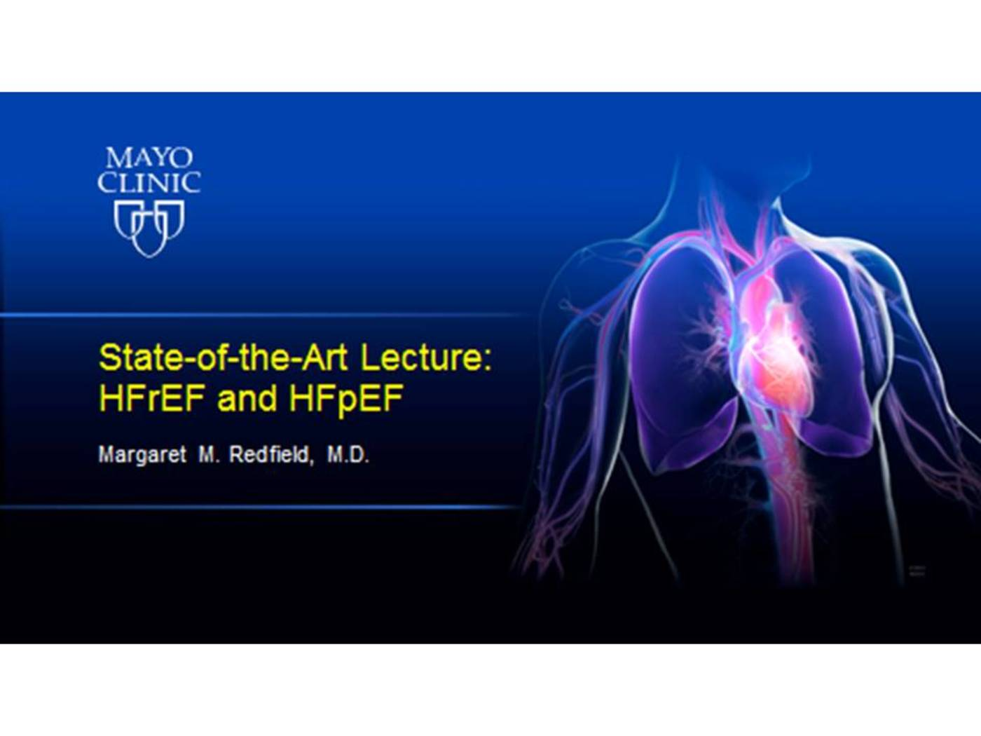 State-of-the-Art Lecture: HFrEF and HFpEF