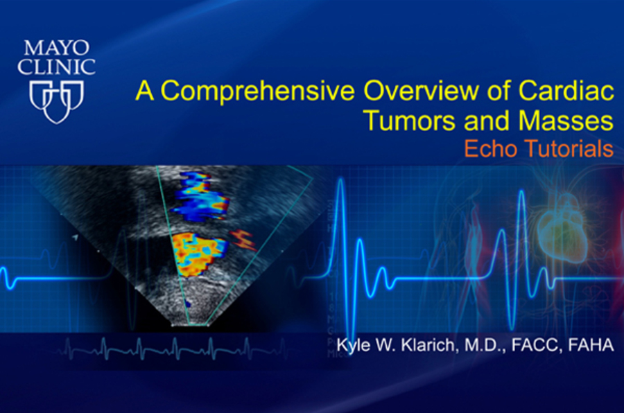 A Comprehensive Overview of Cardiac Tumors and Masses