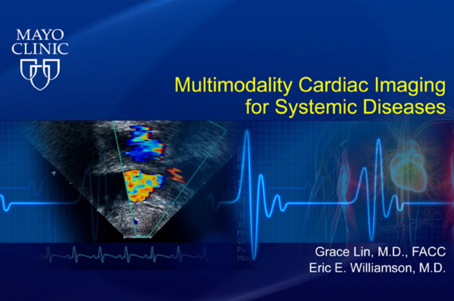 Multimodality Cardiac Imaging for Systemic Diseases