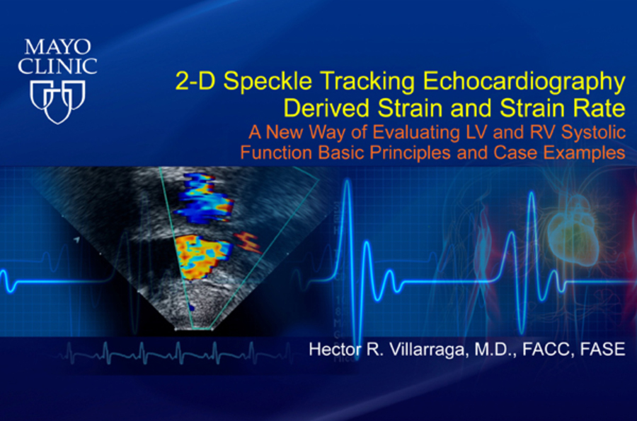 2-Dimensional Speckle Tracking Echocardiography Derived Strain and Strain Rate: A New Way of Evaluating LV and RV Systolic Function Basic Principles and Case Examples