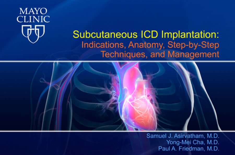 Subcutaneous ICD Implantation: Indications, Anatomy, Step-by-Step Techniques, and Management