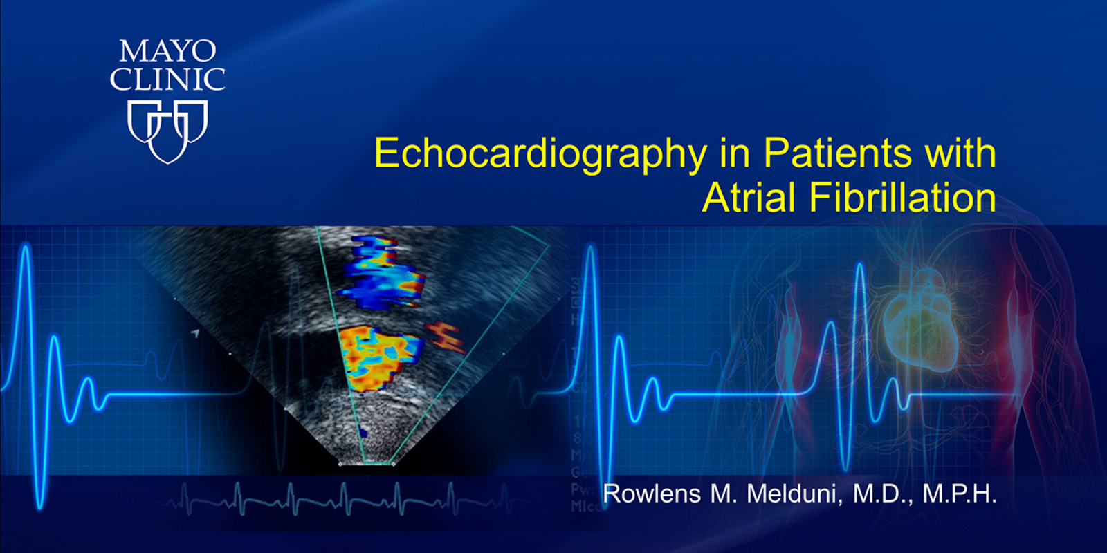 Echocardiography in Patients with Atrial Fibrillation