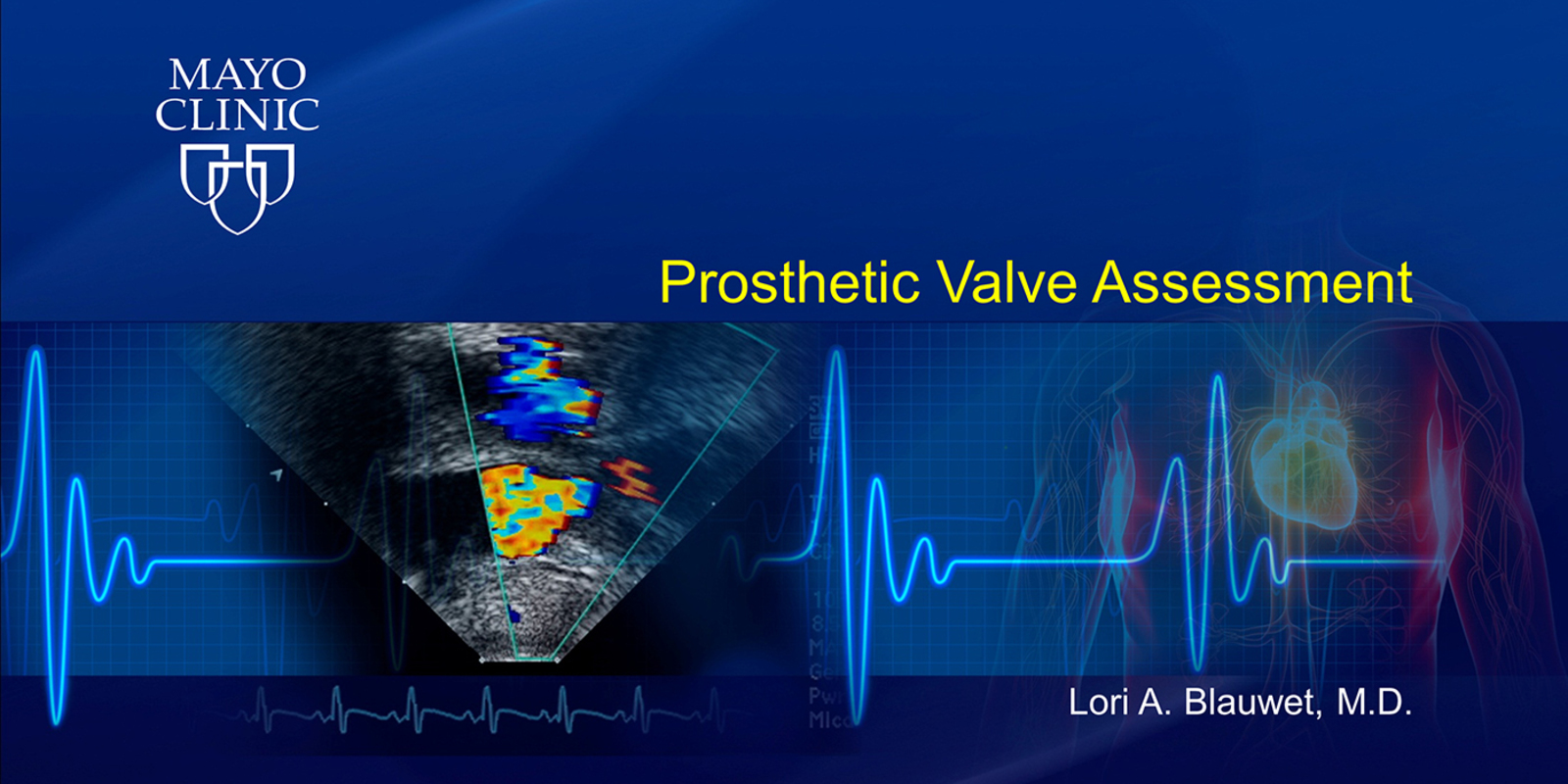 Prosthetic Valve Assessment