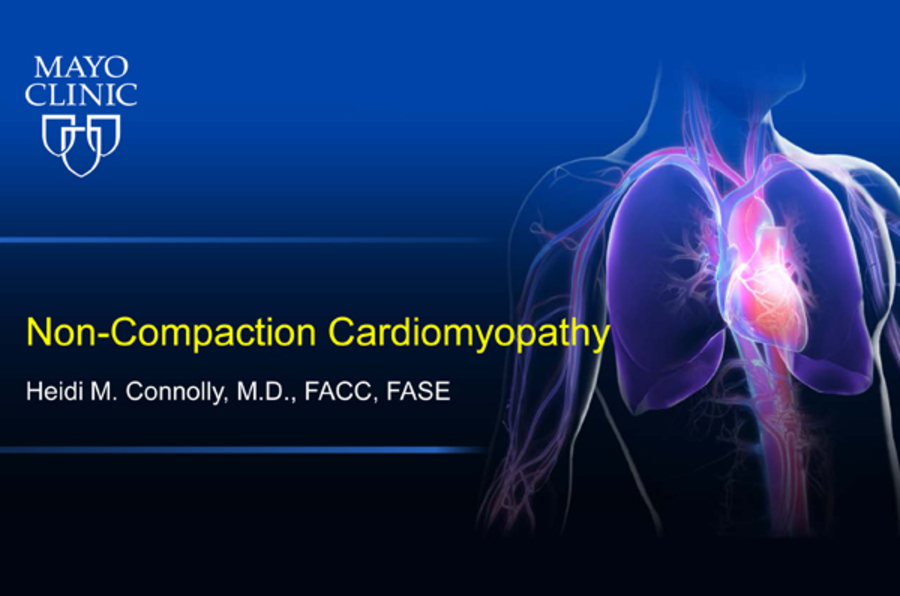 Non-Compaction Cardiomyopathy