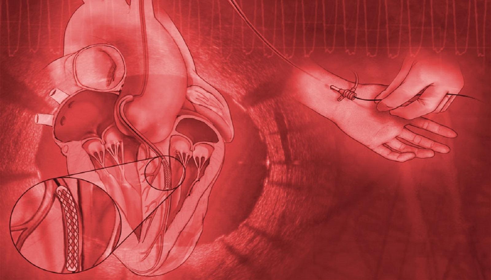 Cardiovascular Medicine CME | Cardiology Education | Mayo Clinic