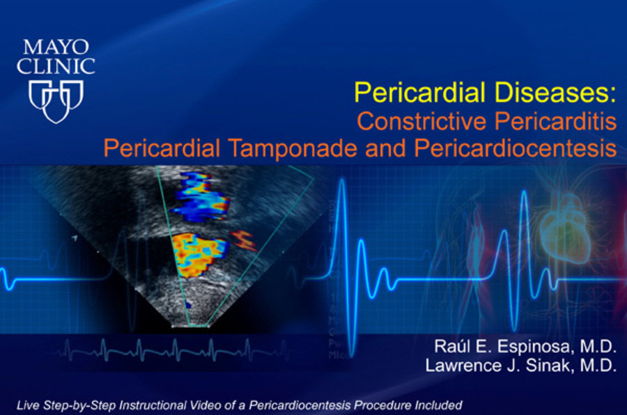 Pericardial Diseases: Constrictive Pericarditis, Pericardial Tamponade and Pericardiocentesis